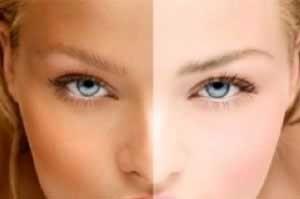 شیوه های روشن و سفید کردن قسمت هایی از پوست بدن
