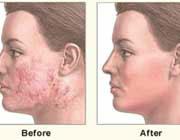 چطور پوست زیبا شفاف و صاف داشته باشیم