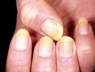 علائم قارچ ناخن و روش درمان خانگی قارچ ناخن