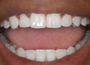 جرم گیری دندان لازم است یا نه