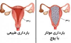 دانستنی هایی درباره بارداری پوچ یا مولار