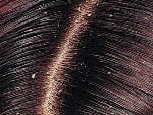 خارش پوست سر و شوره از علل تا درمان