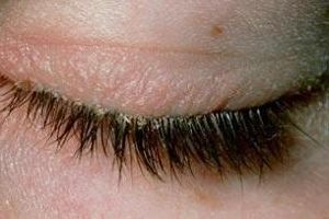what-causes-efflorescence-eyelashes